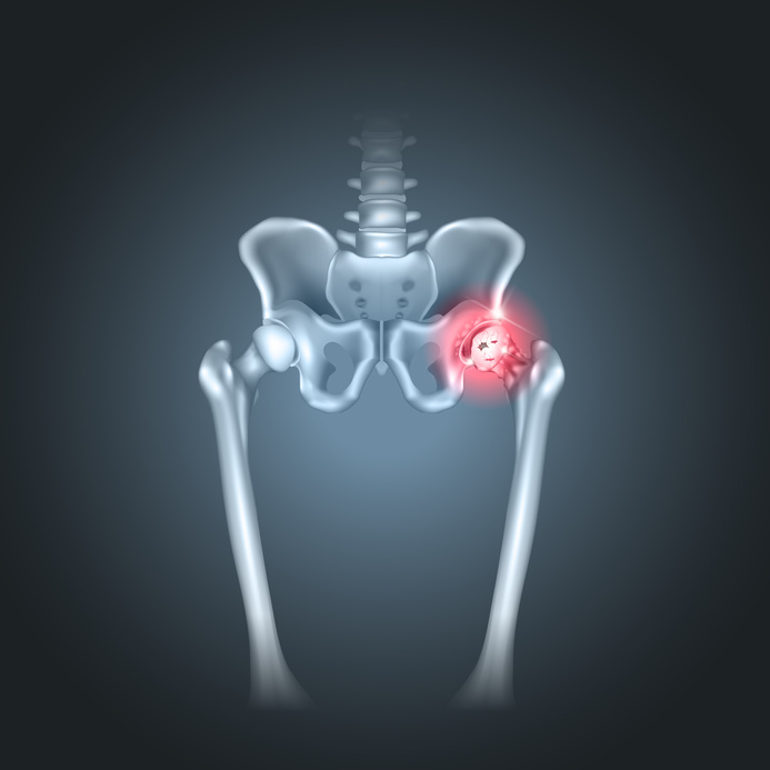 Va joint replacement surgery