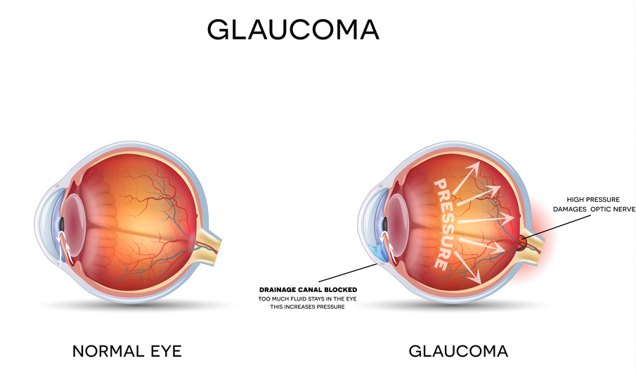 Cataract surgery springfield mo