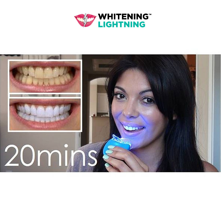 The Smile Science Harley Street Professional Teeth Whitening Treatment is a unique advanced non-peroxide home whitening solution, it is specially formulated to desensitise and remove stains thereby whitening and brightening the appearance of your teeth.