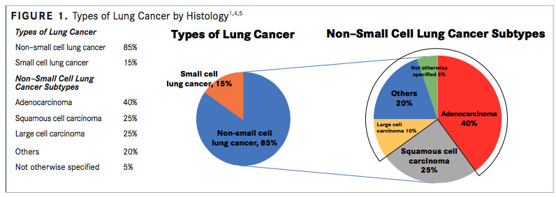 Diagnosis, Staging, and Testing for Nonsquamous NSCLC