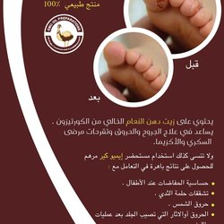بروشور طبي إميو كير /EMUCARE Brochure