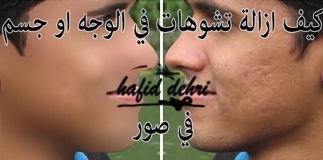 إزالة تشوهد في الوجه او جسيم في صورا