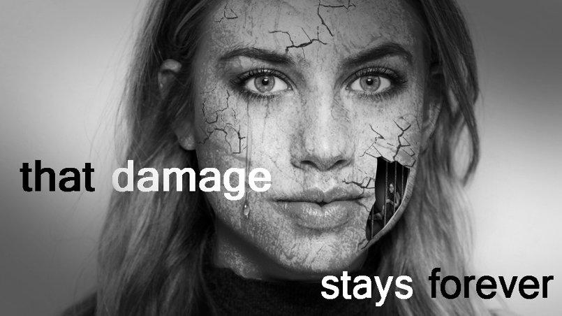 ذلك الضرر يبقى للأبد (that damage stays forever)