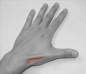 Fig 1 - The left anatomical snuffbox. Note its lateral position on the dorsum of the hand