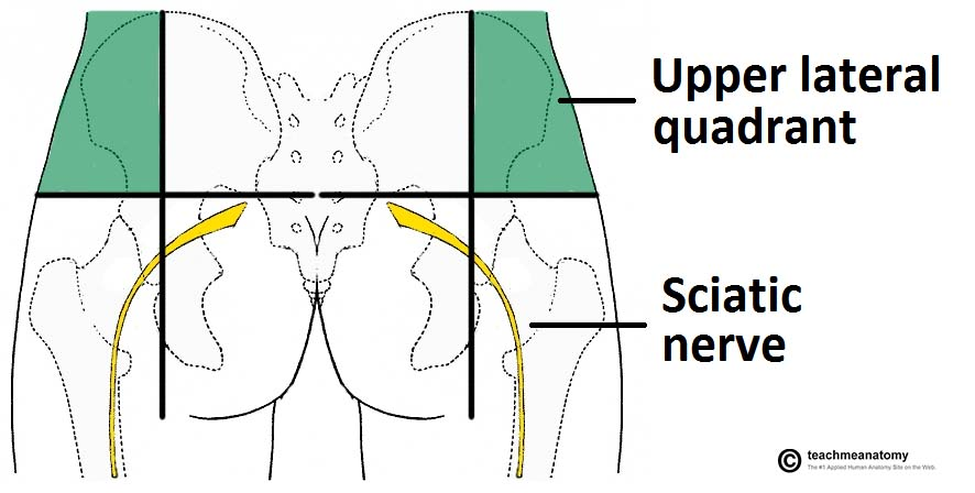 Fig 1.1 - Safe intramuscular injections into the gluteal region.