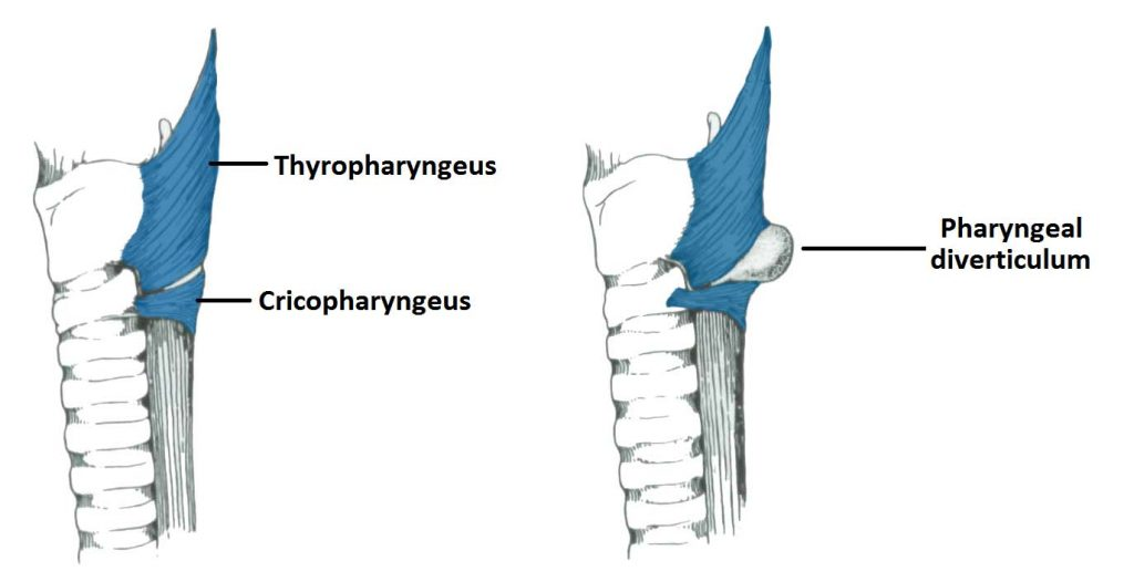 Fig 8 - Pharyngeal diverticulum.