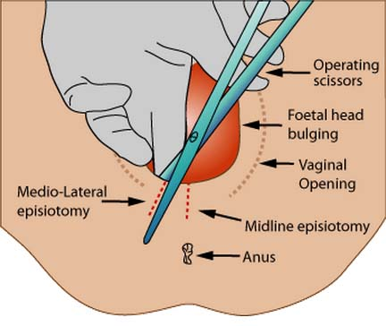 Fig 1.4 - An episiotomy is delivered to avoid tearing of the perineum and/or the pelvic floor. There are two different episiotomies that can be performed.