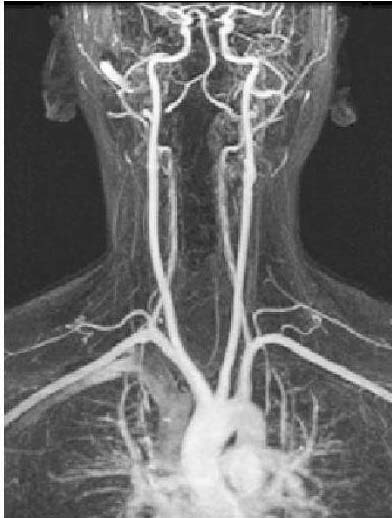 Fig 1.0 - Arteriogram of the arterial supply to the CNS.