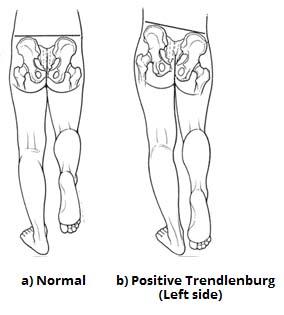 muscles of the gluteal region superficial deep teachmeanatomy