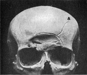 Fig 5.0 Skull showing depressed fracture of the frontal bone, with linear fracture marked A