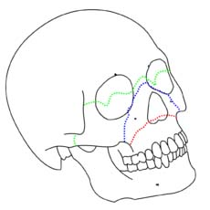 Fig 1.4 - Le fort classification of maxillary fractures