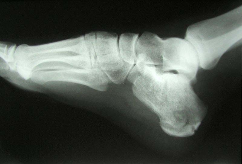 Fig 1.2 - X-ray of a calcaneal fracture.