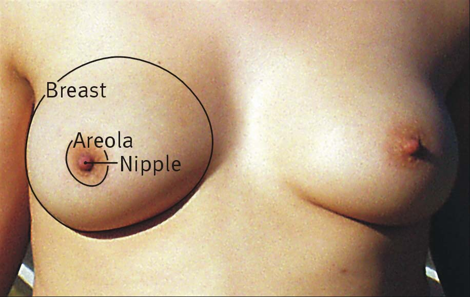 Fig 1.0 - The surface anatomy of the breast. Note that the axillary tail has not been labelled in this diagram.