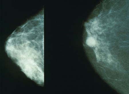 Fig 4 - Mammogram showing a normal breast (L), and a cancerous breast (R).