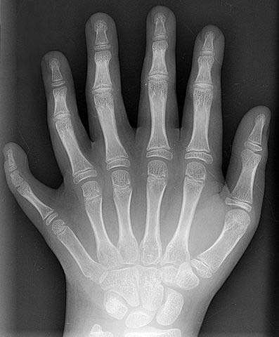 Fig 2 An example of polydactyly on x-ray. This patient had a duplication of their middle finger.