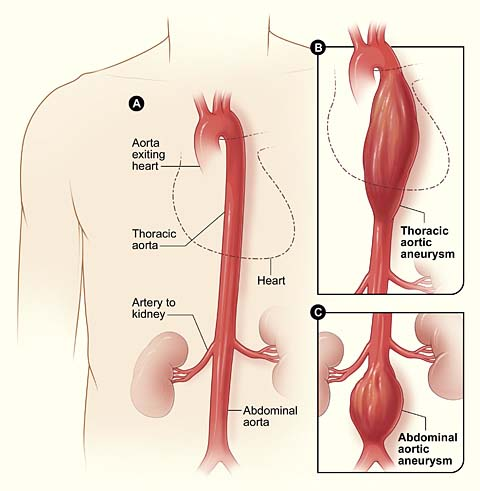 The Aorta - Branches - Aortic Arch - TeachMeAnatomy