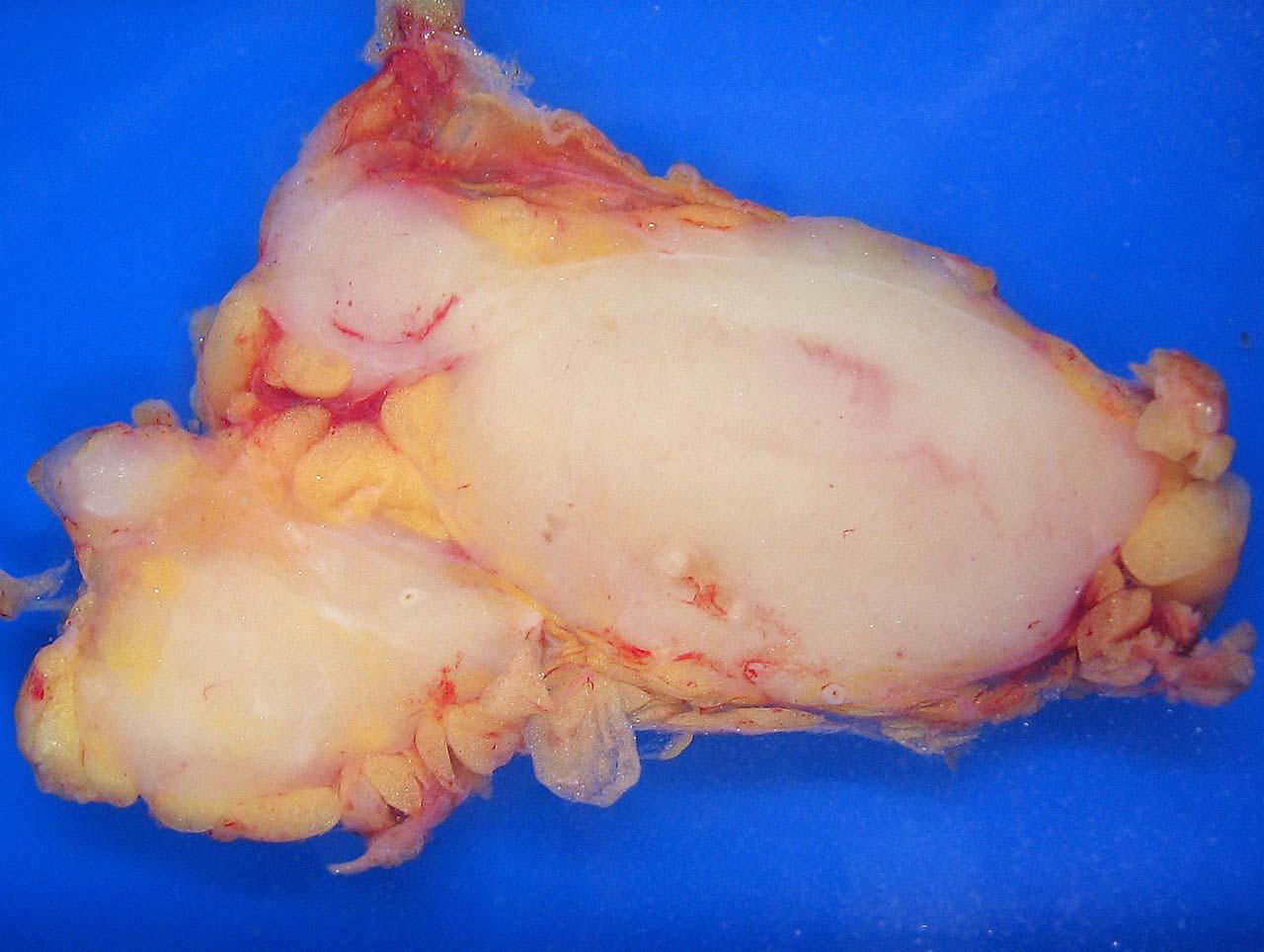 Fig 4 - A follicular lymphoma.