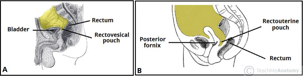 Fig 2 - The peritoneal reflections of the rectum in males (A) and females (B).