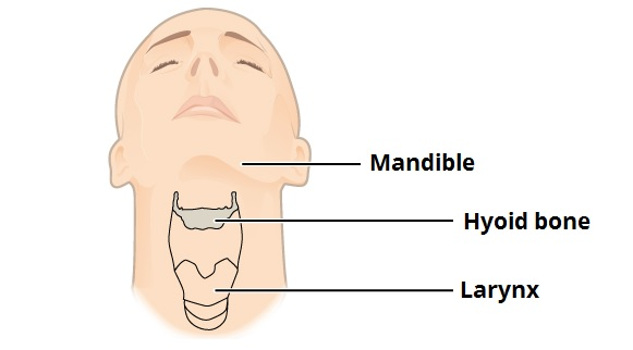 Fig 1 - Position of the hyoid bone in the neck.