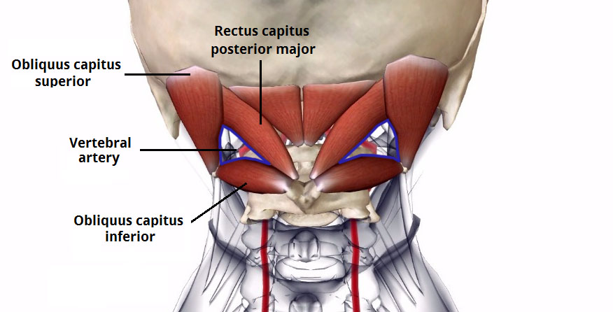 Fig 2 - The suboccipital triangle. It can be used to locate the vertebral artery, as shown on this illustration.