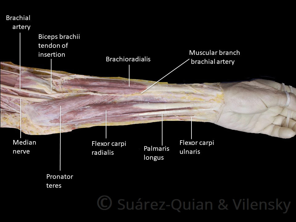 Muscles of the Anterior Forearm - Flexion - Pronation ...