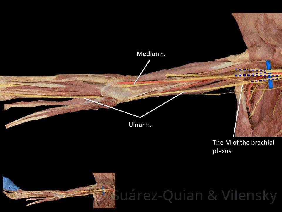 The Median Nerve Course Motor Sensory Teachmeanatomy