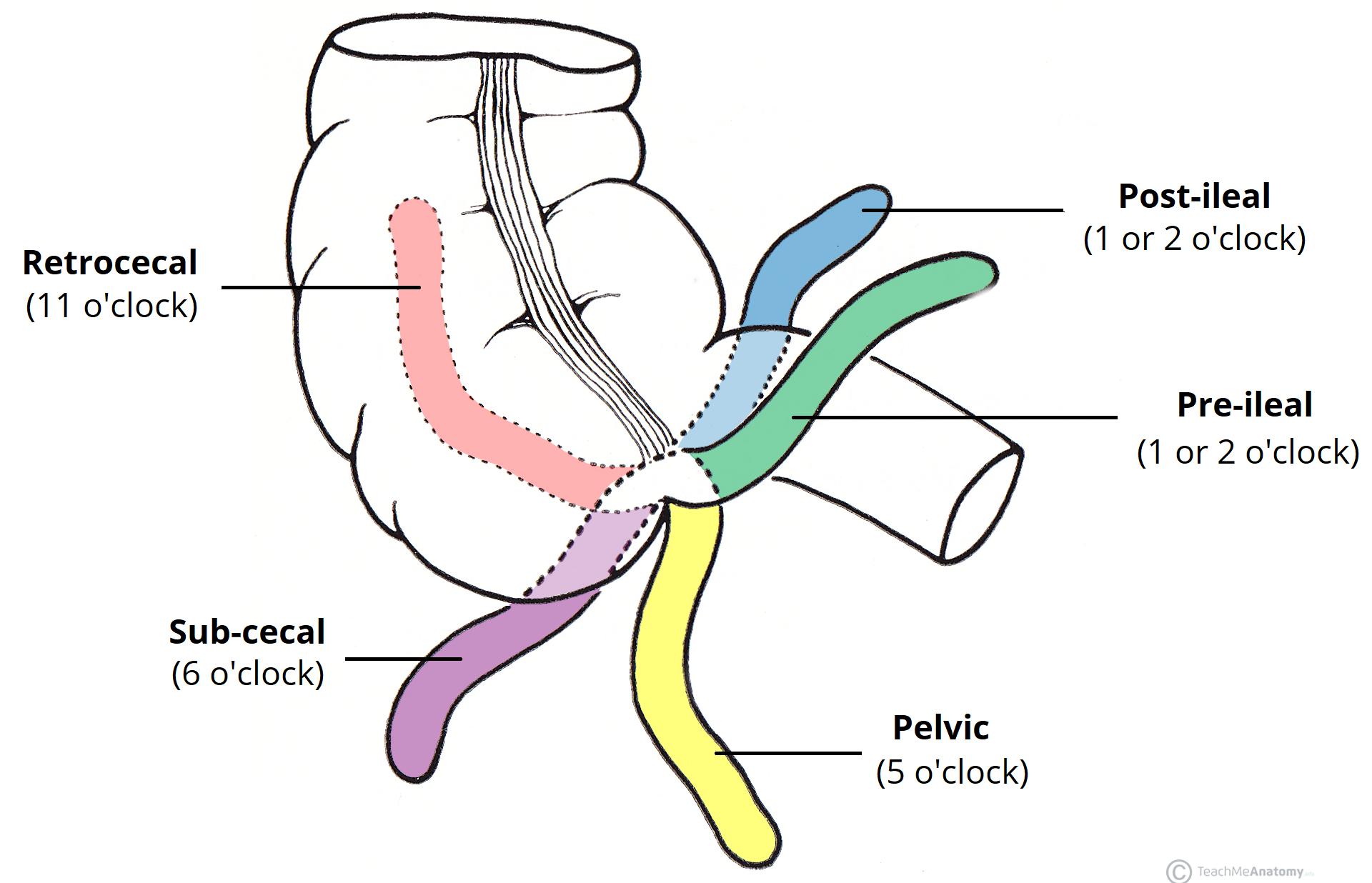 The Appendix Retrocecal Arterial Supply Appendicitis