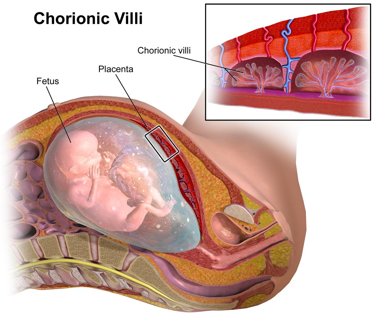 chorionic villus sampling indications procedure risks