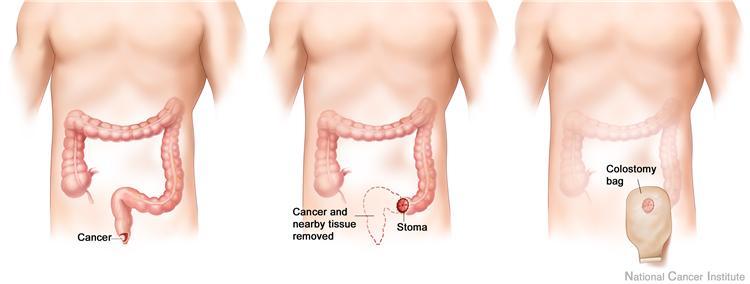 cancer Anal symtoms skin