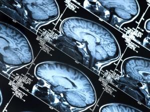 Brainscans-300x225