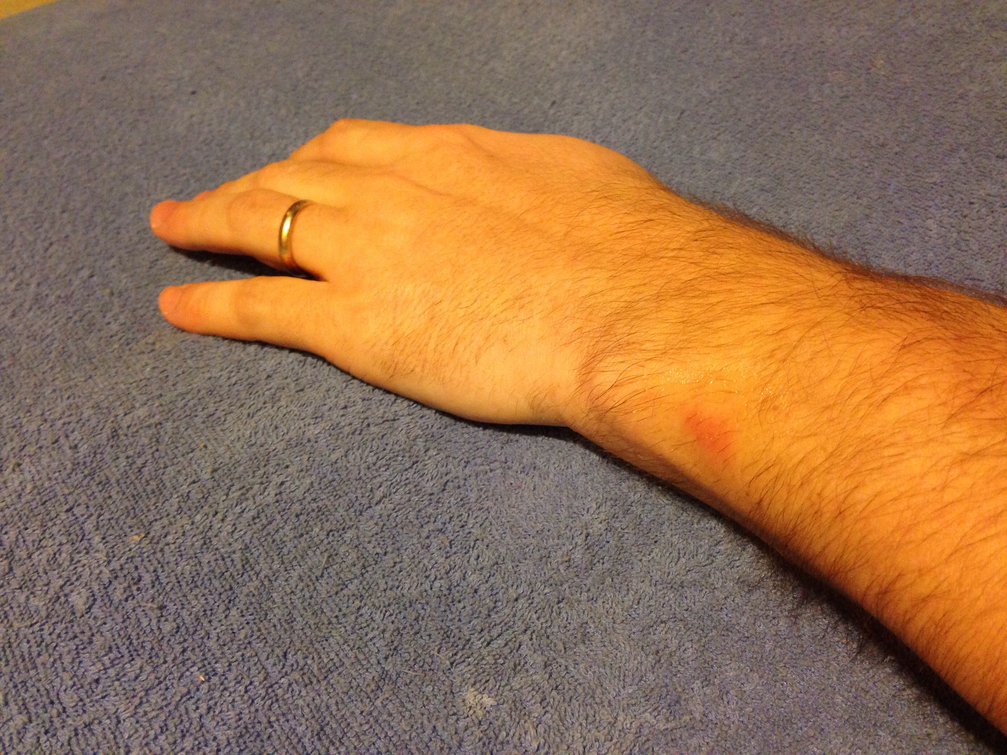 FitBit Force rash the day I stopped wearing it.