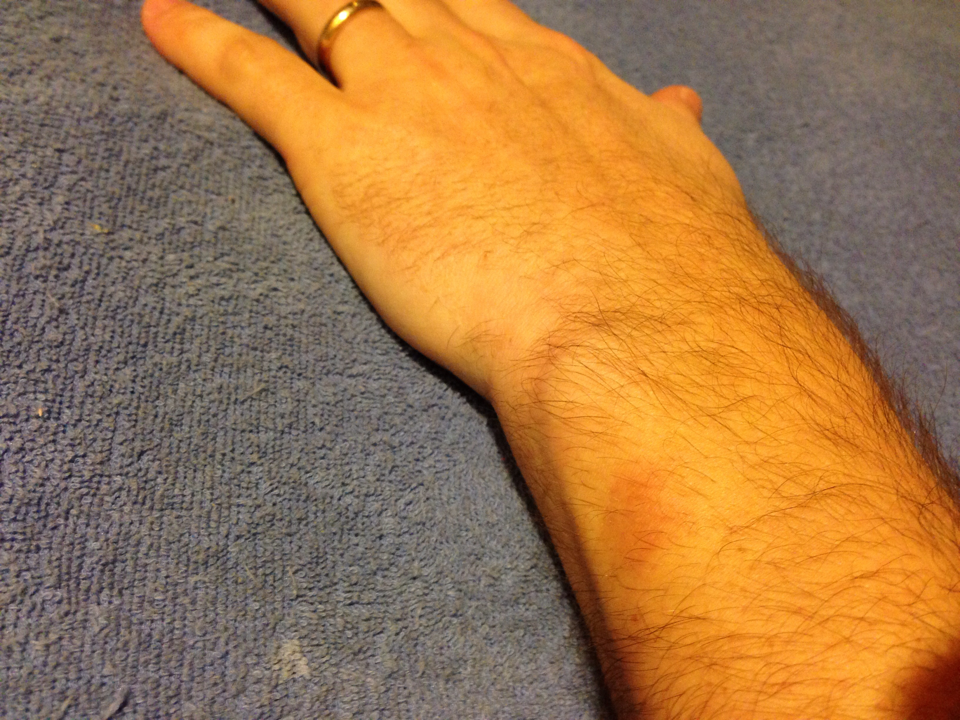 FitBit Force rash 9 days after I stopped wearing it