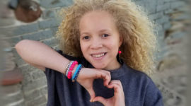 Get to Know Ava Clarke, A Young Breathtaking Albinism Model