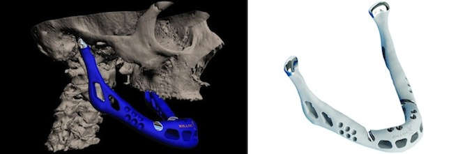 Figure 1.3: A 3D printer-created lower jaw.