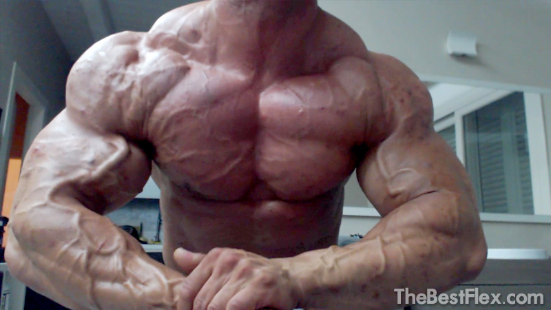 Huge and Vascular