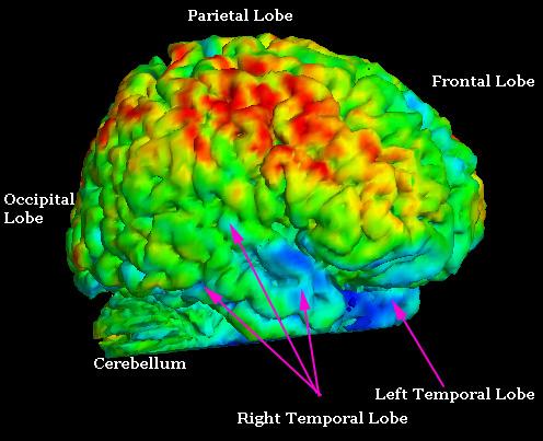 Jim Fallon Pet Whole Brain Copy