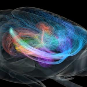 8866 brain