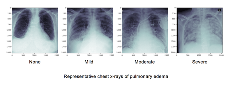 8734 chest x rays