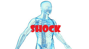 free+shock+management+course
