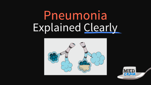 pneumonia explained clearly