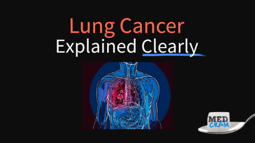 lung cancer explained clearly