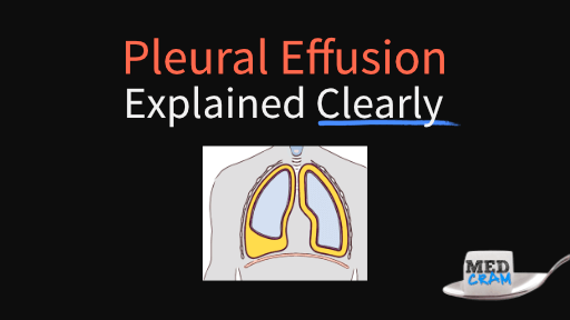 pleural effusion explained clearly