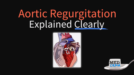 aortic regurgitation (insufficiency) explained clearly
