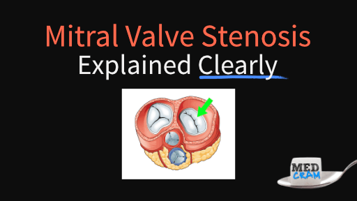 mitral valve stenosis explained clearly