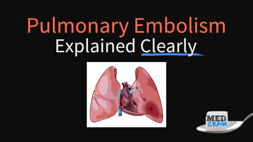 pulmonary embolism explained clearly