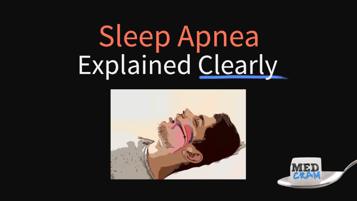 sleep apnea explained clearly