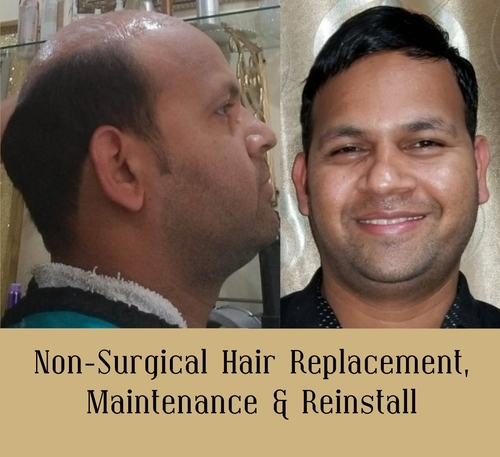 Non Surgical Hair Replacement - Maintenance & Re-install