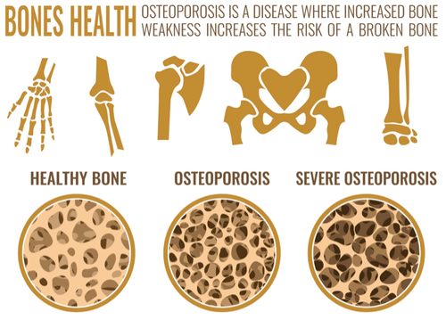 Week 2 - Am I at risk of osteoporosis? What are the causes?