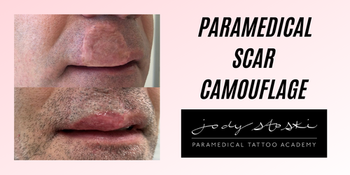 Paramedical Tattoo Scar Camouflage