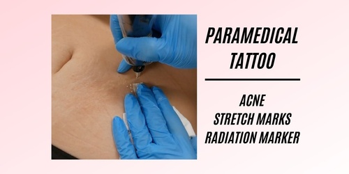 Paramedical Tattoo Acne + Stretch Mark + Radiation Marker